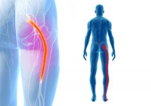 sciatica-stretches-top-e1536749604778